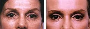 100% TCA (1oz) (30 ml) by RePare Skincare from RePare Skincare
