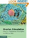 Ovarian Stimulation
