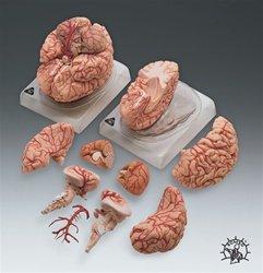 Deluxe Brain w/Arteries