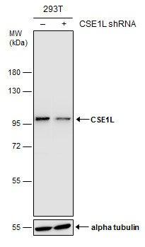 Amazon.com: Anticuerpo CSE1L [GT5111] - segregación ...