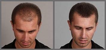 Fixplant Keratin Hair Building Fibers - Color Dark Brown; 25 Grams (Net Wt .88oz) by Fixplant: Amazon.es: Salud y cuidado personal