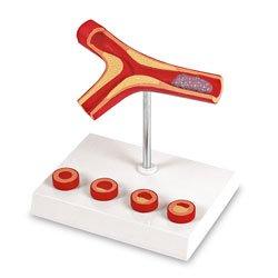 Atherosclerosis and Thrombosis Model Free Phlebotomy Catalogue