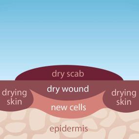 Dry Healing