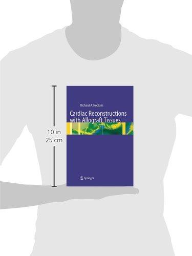 Cardiac Reconstructions with Allograft Tissues: Amazon.es: Hopkins, Richard A., Xenakis, Thomas, Karlson, Karl E.: Libros en idiomas extranjeros