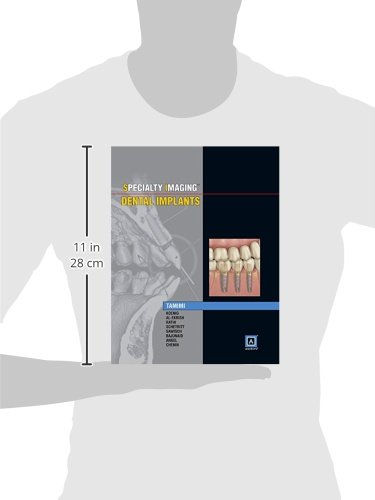 Specialty Imaging: Dental Implants, 1e