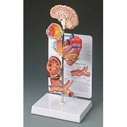 Hypertension Model Set (Model Set Hypertension)