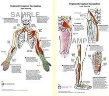 Peripheral Entrapment Neuropathy Poster (8 1/2