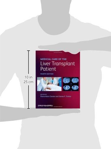 Medical Care of the Liver Transplant Patient - medicalbooks.filipinodoctors.org