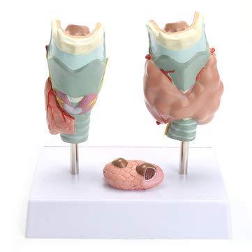 Human Anatomical Thyroid Gland Pathology Anatomy Medical Teaching Model - Lab & Scientific Supplies Science Education - 1 x Thyroid Gland model, 1 x Base
