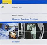 Minimax Fracture Fixation : Case Collection: Lower Leg * Ankle Joint * Nonunions * Autogenous Bone Transplantation, Weber, Bernhard G., 3131392711