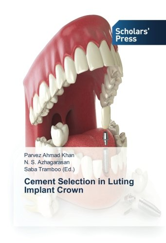 Cement Selection in Luting Implant Crown