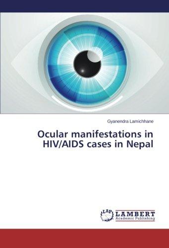 Ocular manifestations in HIV/AIDS cases in Nepal pdf epub