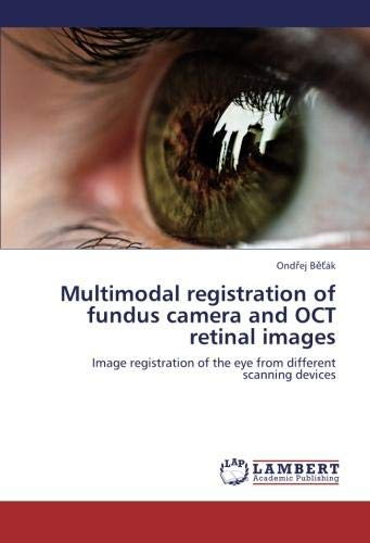 Multimodal registration of fundus camera and OCT retinal images: Image registration of the eye from different scanning devices
