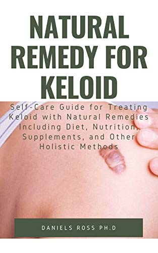 NATURAL REMEDY FOR KELOID: What Your Doctor Will Not Tell You and Secret of Living a Keloid Free Life