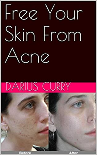 Free Your Skin From Acne
