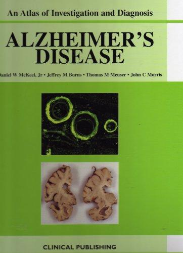 Alzheimers Disease | An Atlas of Investigation an Alzheimers Disease | An Atlas of Investigation an