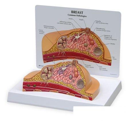 3B社 女性疾患 乳房疾患モデル (w33351)   B003Z2SDJ0
