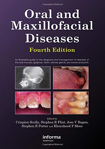 Oral and Maxillofacial Diseases, Fourth Edition by Brand: Informa Healthcare