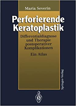 Book Perforierende Keratoplastik