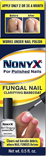 NonyX Nail Clarifying Basecoat for Toenails and Fingernails, 0.5 oz (Best Nail Polish Colors For February)