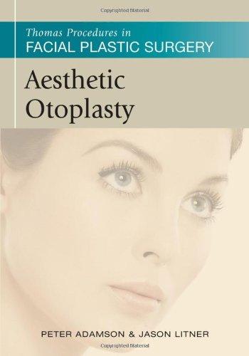 Aesthetic Otoplasty (Thomas Procedures in Facial Plastic Surgery)