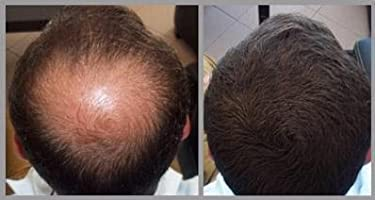 Fibras para cabello (Marrón oscuro 22 g) Fibras de queratina 100% naturales Cubierta rápida Adelgazamiento Calvicie manchas | Parezca más joven, más ...