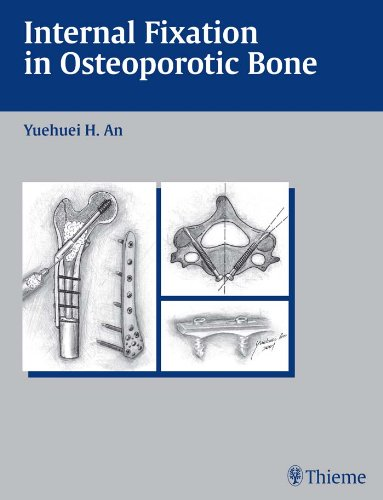 Internal Fixation in Osteoporotic Bone (1st 2002) [An]