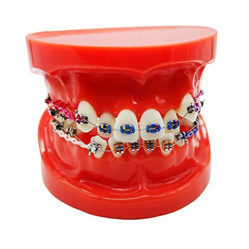 [해외]치과 Typodont 정신 브래킷 교정 치아 모델 합자 넥타이 레드 / Dental Typodont With Mental Brackets Orthodontic Teeth Model With Ligature Ties Red