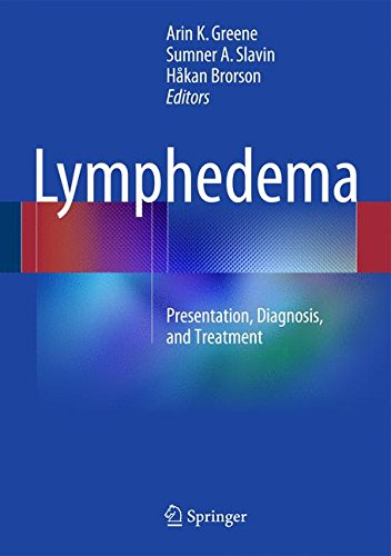 Lymphedema: Presentation, Diagnosis, and Treatment