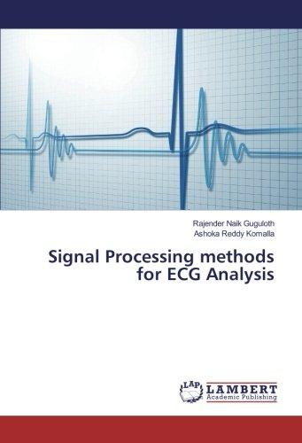 Signal Processing methods for ECG Analysis