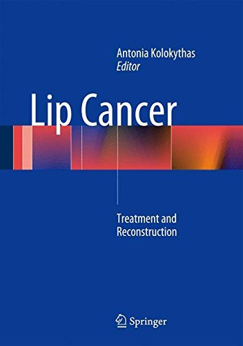 Treatment For Lip Cancer - 8