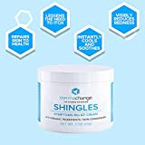 Natural Shingles Treatment and Relief Cream - with
