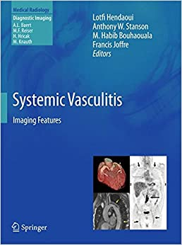 Book Systemic Vasculitis: Imaging Features (Medical Radiology)