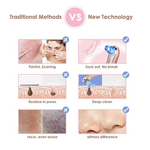 JolyJoy Blackhead Remover Electric Vacuum Suction Machine w/Light Therapy to Remove Acne & Comedones/Deep Clean Pores/Skin Exfoliating & Microdermabrasion, USB Rechargeable Facial Extractor Tool