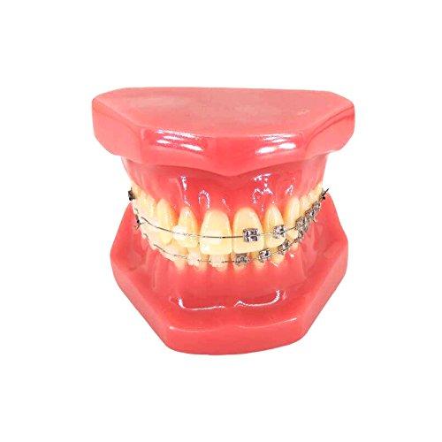 YOUYA Dental TM-208 Demonstration Orthodontic Model Teeth Teach Study Tools with Metal and Ceramic Bracket(Red) by YOUYA DENTAL