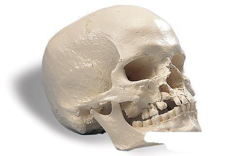 3B社 頭蓋骨模型 小頭症頭蓋モデル (a29-1)   B003Z2TNSK