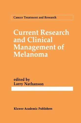 Current Research and Clinical Management of Melanoma (Cancer Treatment and Research) Pdf