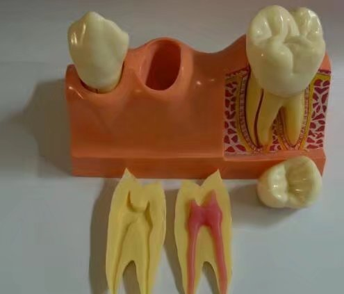 S&D Dental Teaching Demonstration Model Caries Disassembling Model Implant Model Pulp Disease Clinical Model 4 Times Tooth Disassembling Model