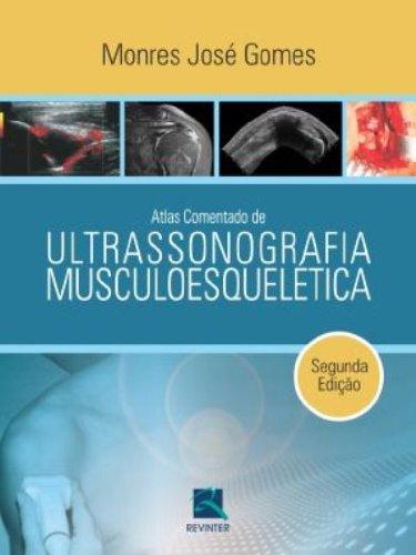 Atlas Comentado de Ultrassonografia Musculoesquelética