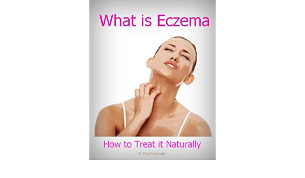What Is Eczema and How to Treat it Naturally - Kindle