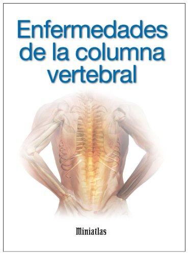 Amazoncom Miniatlas Enfermedades De La Columna Vertebral Spanish