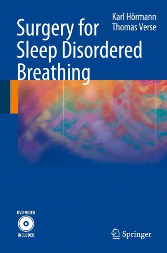 Surgery for Sleep Disordered Breathing