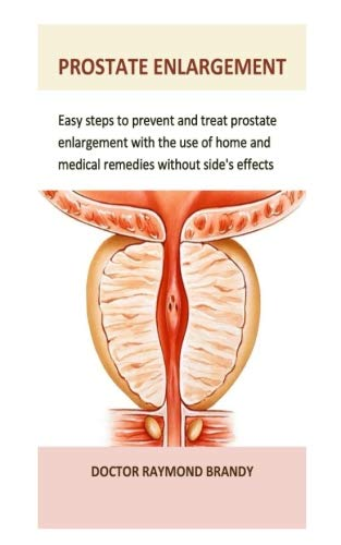 Prostate Enlargement: Easy steps to prevent and treat prostate enlargement with the use of home and medical remedies without side's effects