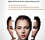VOTALA Scar Removal Cream - Obesity Stretch Mark Repair Cream, Lifts Firming Scars Peel, Advanced Treatment for Face & Body, Old & New Scars from Cuts, Stretch Marks, C-Sections & Surgeries