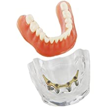 Dentalmall Dental Overdenture Teeth Model Inferior Precision Implants Demo Golden Color