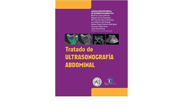 Amazon.com: Tratado de ultrasonografía abdominal (Spanish Edition) eBook: Asociación Española de Ecografía Digestiva: Kindle Store