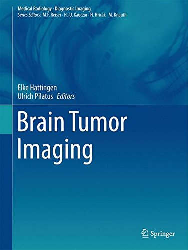 Brain Tumor Imaging (Medical Radiology)