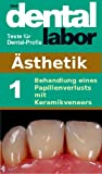 img - for Behandlung eines Papillenverlusts mit Keramikveneers (das dental labor Fachtexte 13) (German Edition) book / textbook / text book