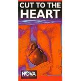 Nova: Cut to the Heart