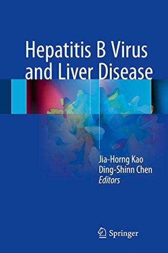 Hepatocellular Carcinoma Liver (Hepatitis B Virus and Liver Disease)